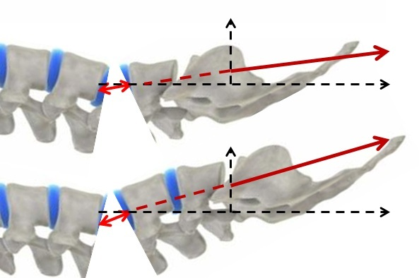 Distraction of vertebral segment