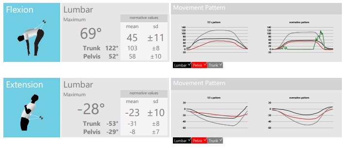 Stephen Small's standing flexion / extension measures show the accuracy of ViMove