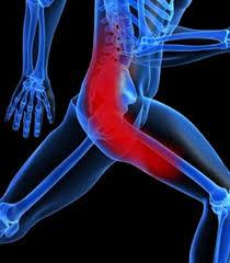 sciatica image 2 - runner